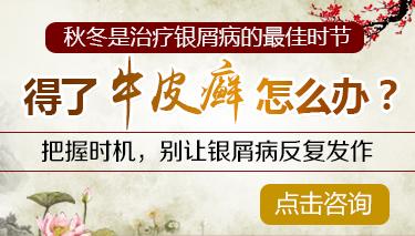南京治疗牛皮癣多少钱